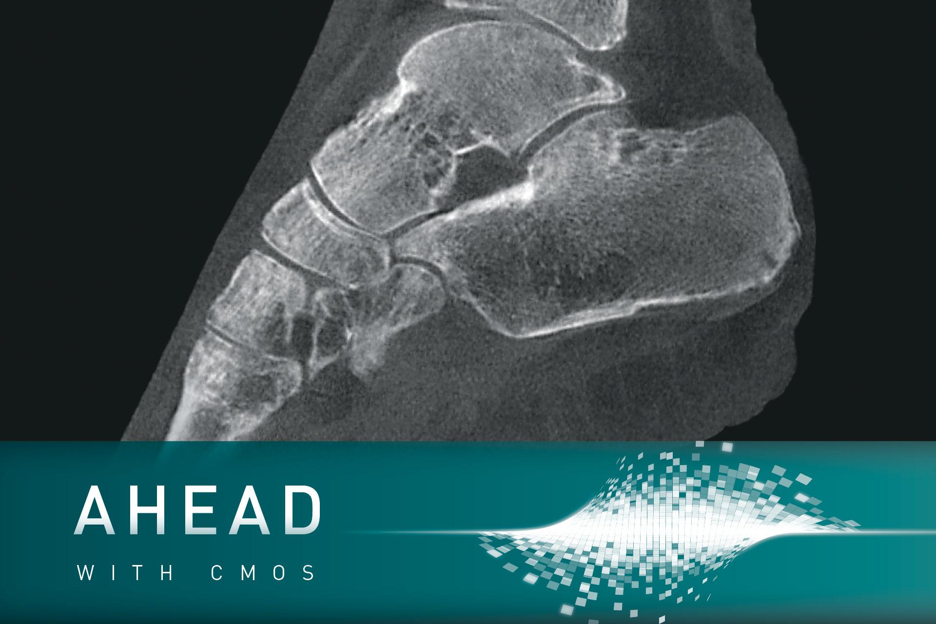 Klinisches Bild mit Key Visual Ahead with CMOS